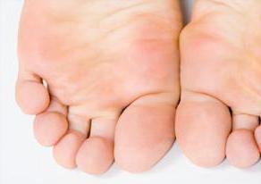 Тахикардия причины лечение народными средствами