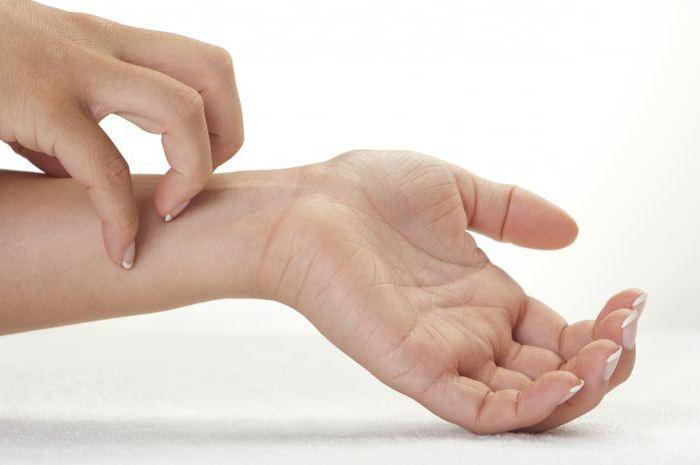 Что делать если чешутся руки