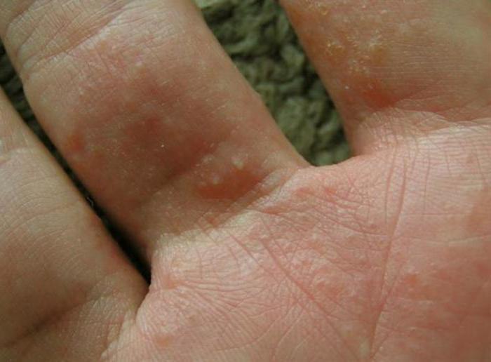 Чем лечить водяные прыщики на руках