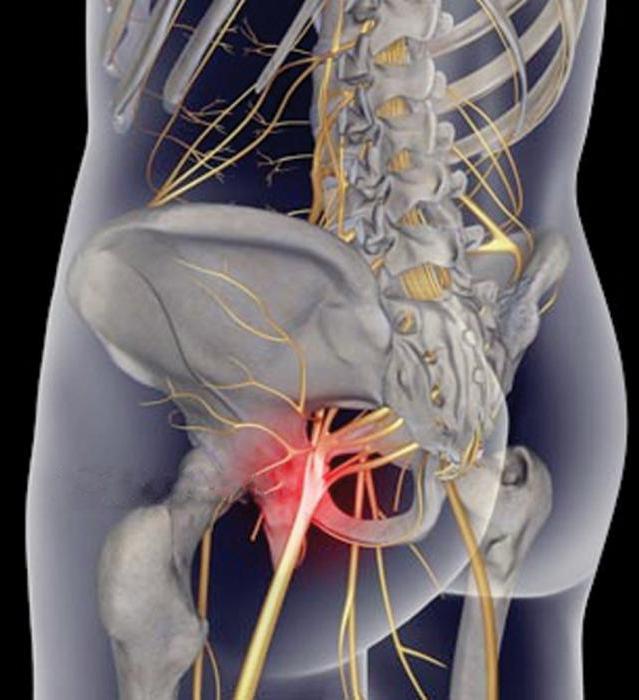 Доктор мясников о лечении воспаления седалищного нерва