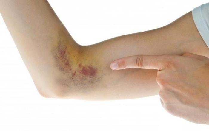 Лечение тянущей боли в спине