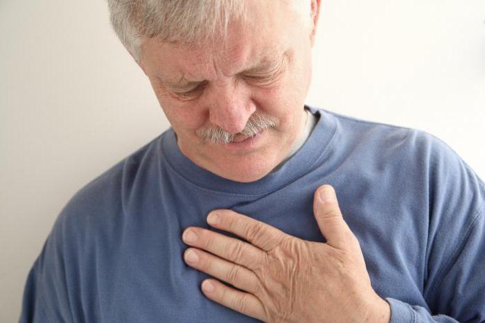 невралгия боль в грудной клетке