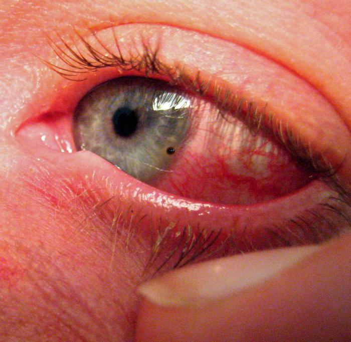 Чем закапать глаза после сварки в домашних