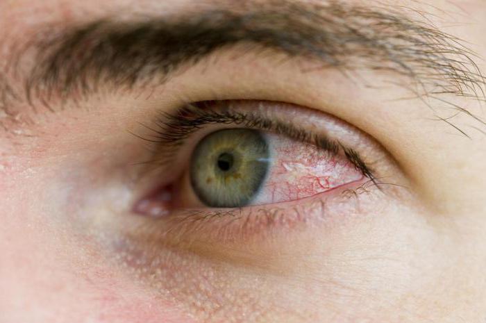 красные глаза болят что делать Глаза красные: что делать и какие бывают причины красных глаз?