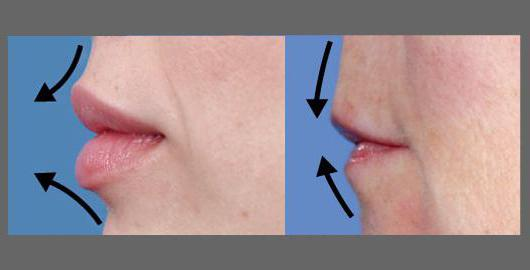 lip augmentation effects