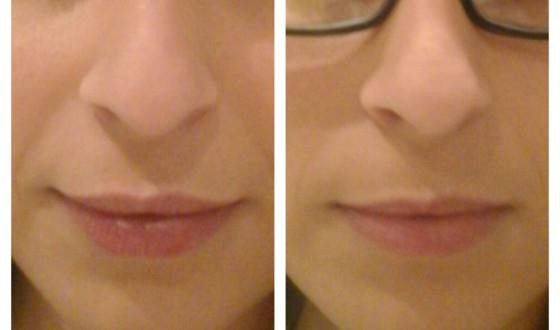 swelling after lip augmentation