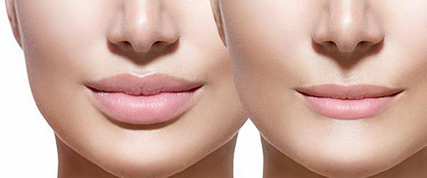 lip augmentation with hyaluronic acid review