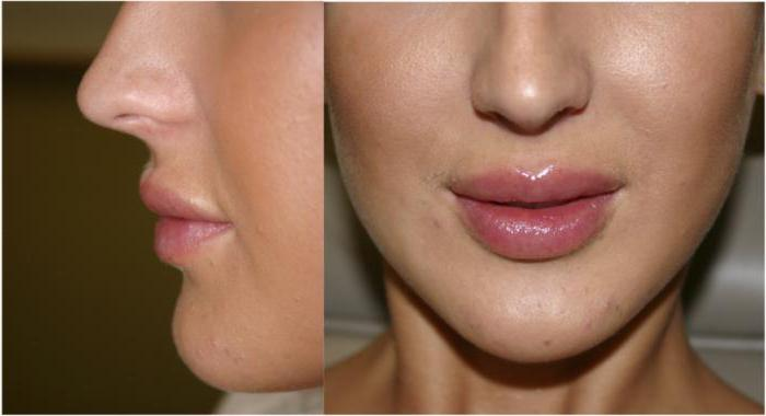 lip augmentation Price