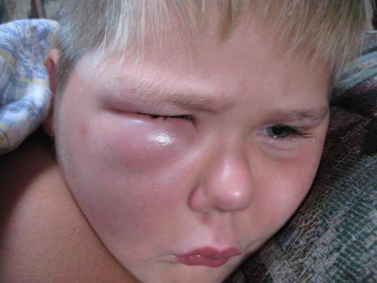 укус мошки фото у детей