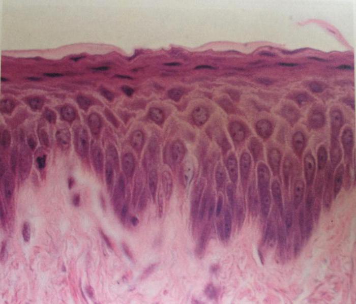 epiteliy-ploskiy-spermogramma