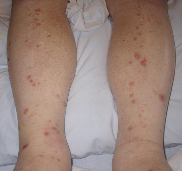 сыпь у ребенка на руках и ногах не чешется