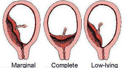 Что значит краевое предлежание плаценты