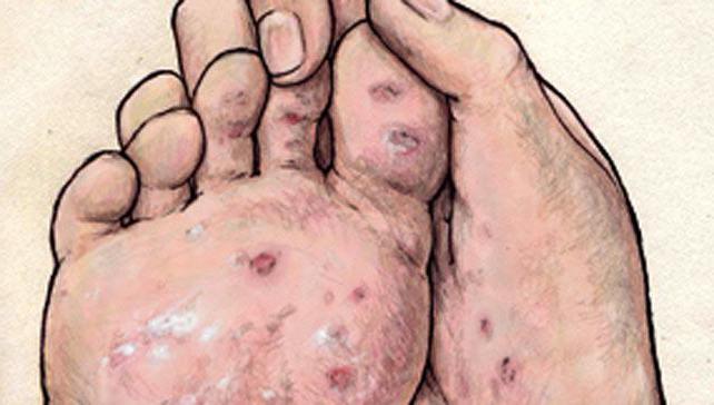 методика лечения сифилиса