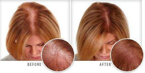 Плазмолифтинг для волос отзывы фото