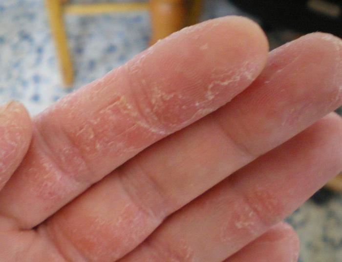 как можно вылечить аллергию