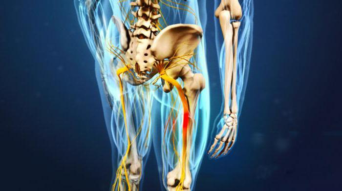 pinched nerve in the leg
