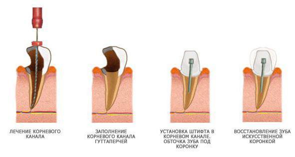 штифт в зуб отзывы