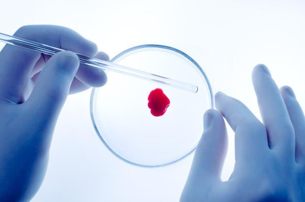 blood test for HCV positive