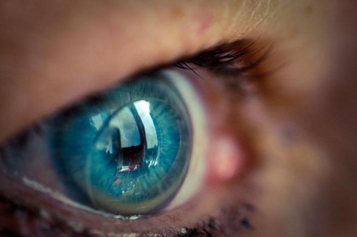 Близорукость и дальнозоркость одновременно на разных глазах