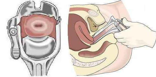 зеркала в гинекологии виды фото