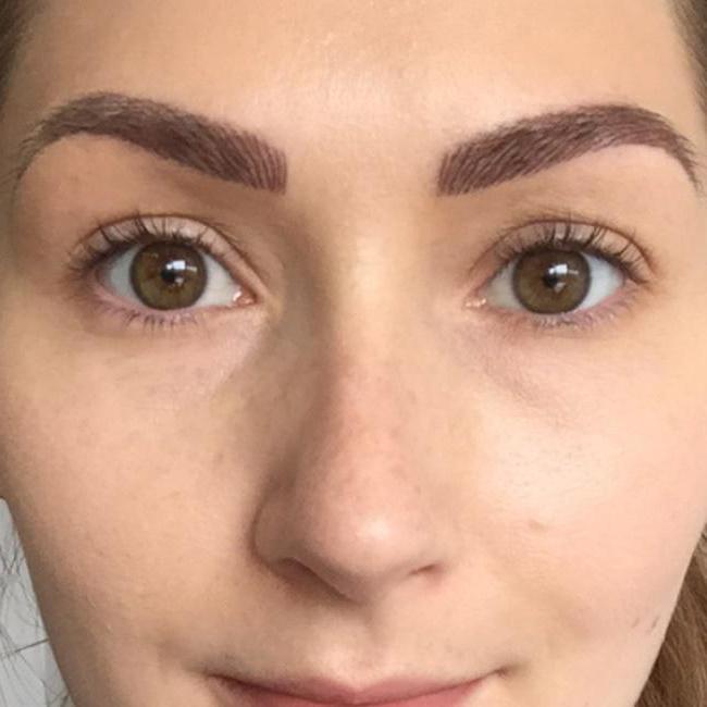 eyebrow microbleeding