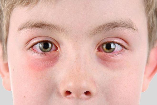 Конъюнктивит глаз как передается