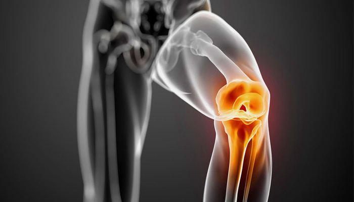 Двусторонний гонартроз 2 степени коленного сустава лечение
