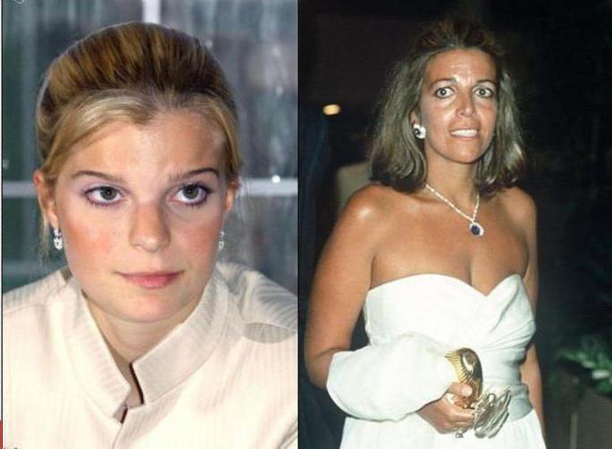 Christina Onassis Cause of Death