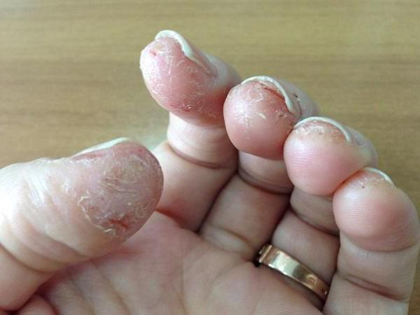 аллергия на гель лак у клиента