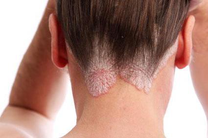 losterin cream reviews for atopic dermatitis