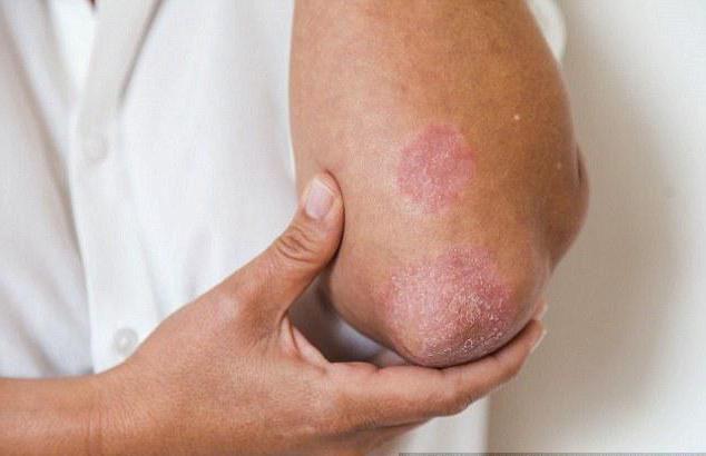 losterin cream eczema reviews