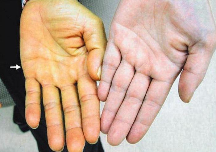 Прогноз лечения гепатита с