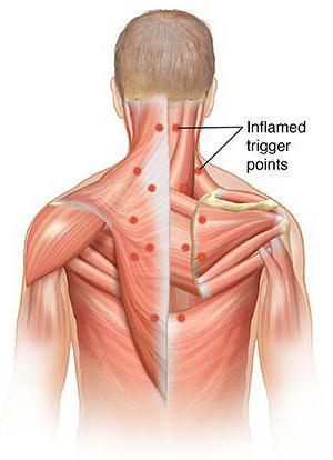 триггерные точки в мышцах