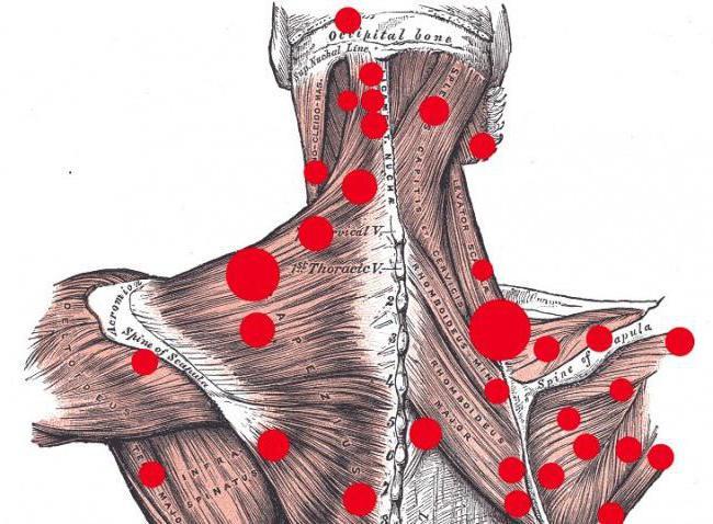 остеопатия триггерные точки