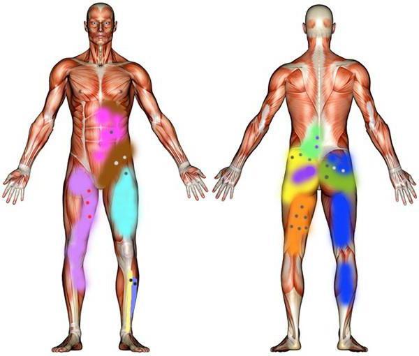 триггерные точки на теле