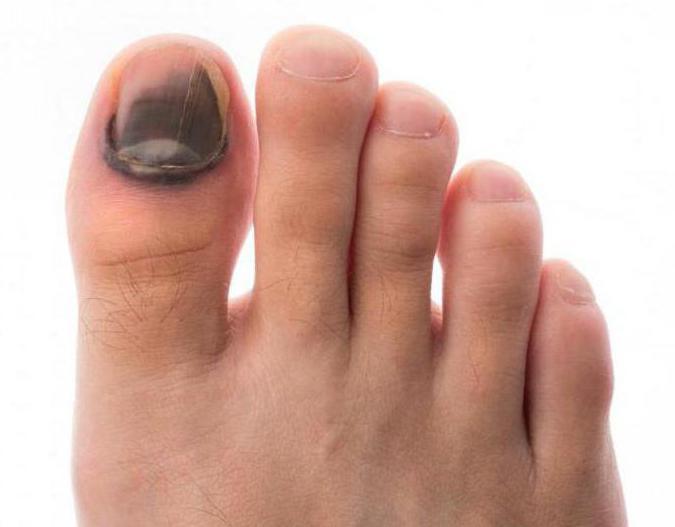 Посинел ноготь на большом пальце ноги что делать