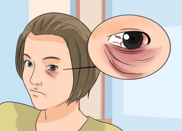 how to disguise a bruise under the eye from a blow