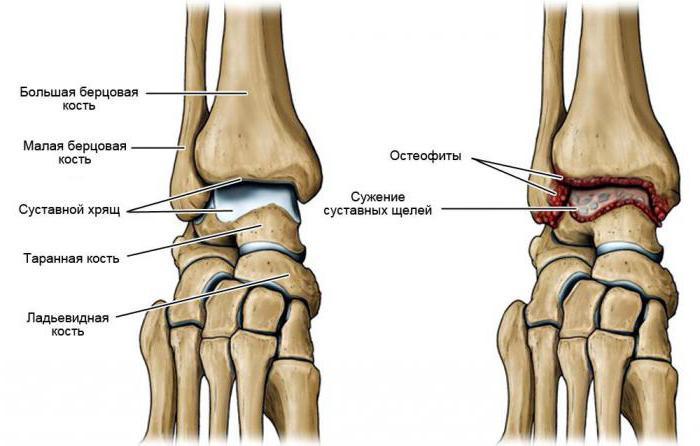 артроз кистевого сустава лечение народными средствами о