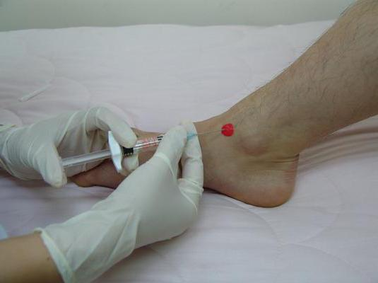 Что такое деформирующий артроз голеностопного сустава