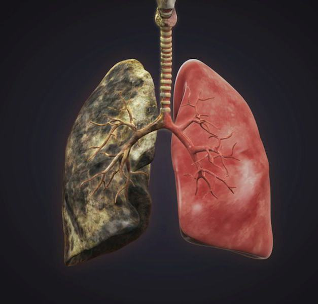 smoker's lungs experience 15 years