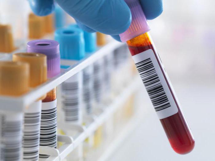 Результаты анализов мочи и крови