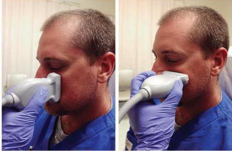 воспаление придаточных пазух носа