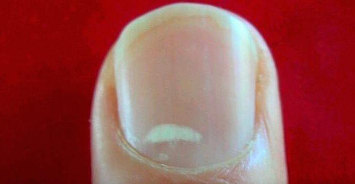 Причина темных пятен на ногтях рук причины 64