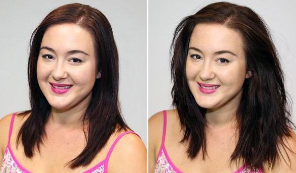 эксидерм активатор роста волос спрей