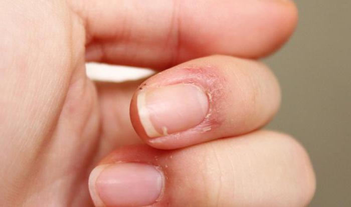 Очень сухая кожа вокруг ногтей что делать
