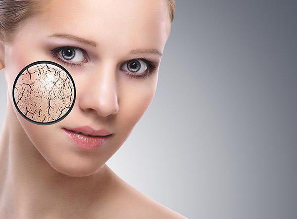 как избавиться от шелушения на лице что делать если кожа сухая