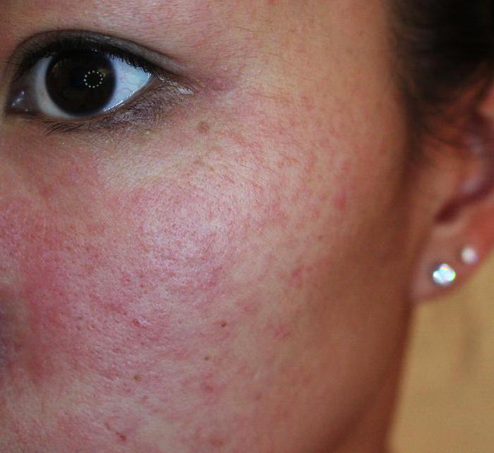 шелушится кожа на лице зимой что делать