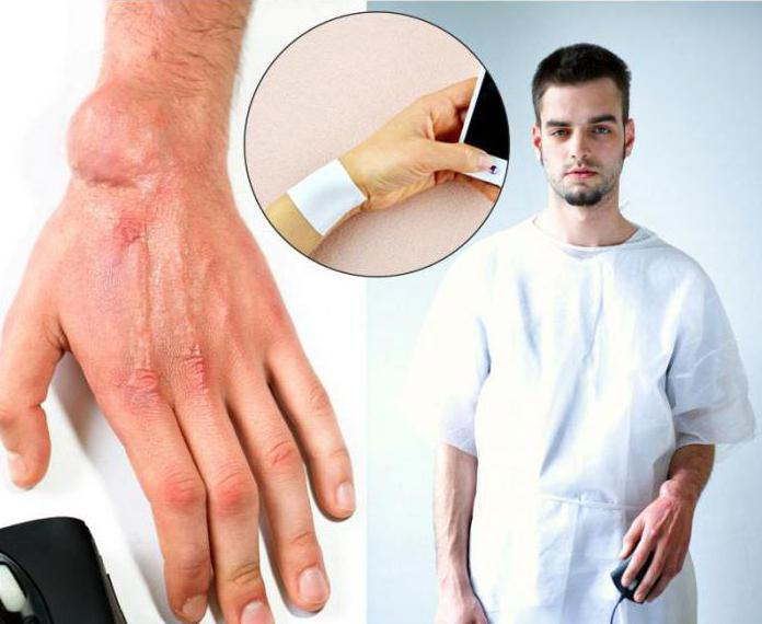 orthopedic plaster zb pain relief reviews