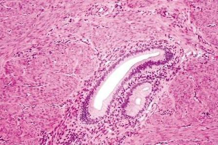 аденомиоз и эндометриоз разница