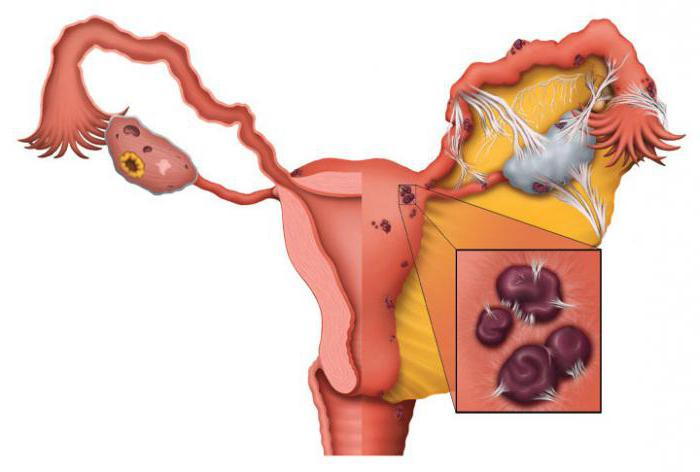 adenomyosis and endometriosis what is the difference